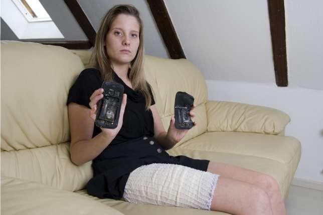 От взрыва Samsung Galaxy S3 девушка получила ожог